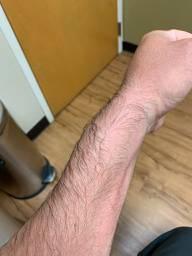 injury_arm_02.jpg.4d0a287e6695af40780ac82377295ebe.jpg