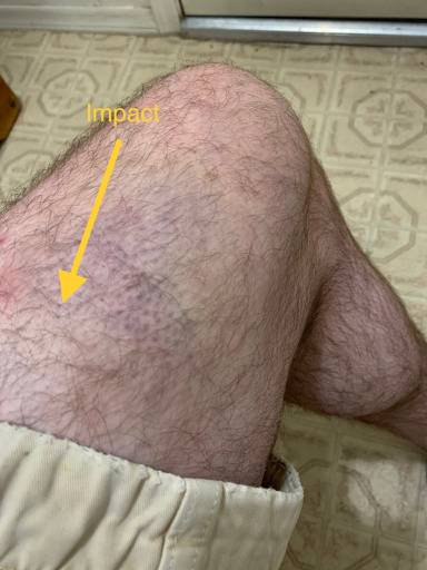 injury_thigh_left.jpg.bc6a2b2bf666984ae061f66e92952d79.jpg