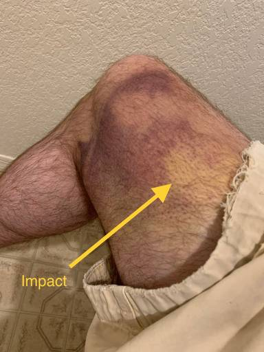 injury_thigh_right.jpg.9338191a45df229e5f65c9bbc39a6e77.jpg